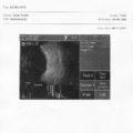 PIROP -Przykładowy wydruk raportu dla trybu B-scan na drukarce zewnętrznej - opcja