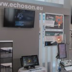 Echo-Son ALBIT scanner MEDICA 2017